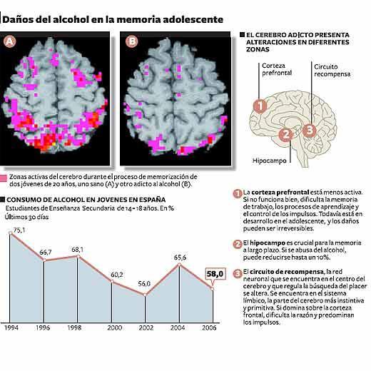danos-del-alcohol-en-la-memoria-adolescente
