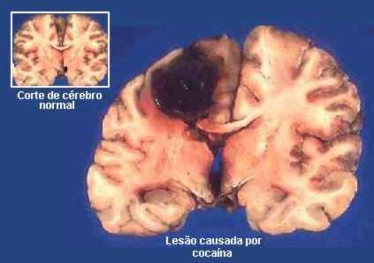 lesiones-en-el-cerebro-a-causa-de-la-cocaina